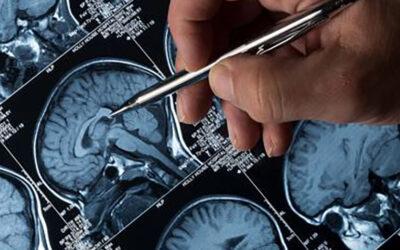 Den drømmende hjerne